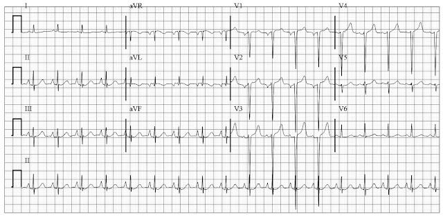 EKG of P pulmonale