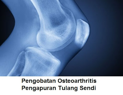 penyebab dan pengobatan osteoarthritis : penyakit pengapuran tulang dan sendi lutut