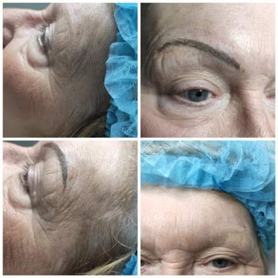 Before and after images of microblading.
