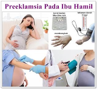 Wanita Wajib Baca! Kenalilah Penyebab Kekurangan atau Kebocoran Air Ketuban Pada Ibu Hamil
