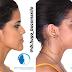 Você viu? Brígida Star mostra o antes e depois de cirurgia na face