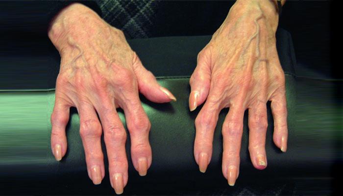 Cara Mencegah dan Mengobati Osteoarthritis di Tangan