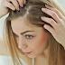 Hair intensify : وصفات لتكثيف الشعر من الامام