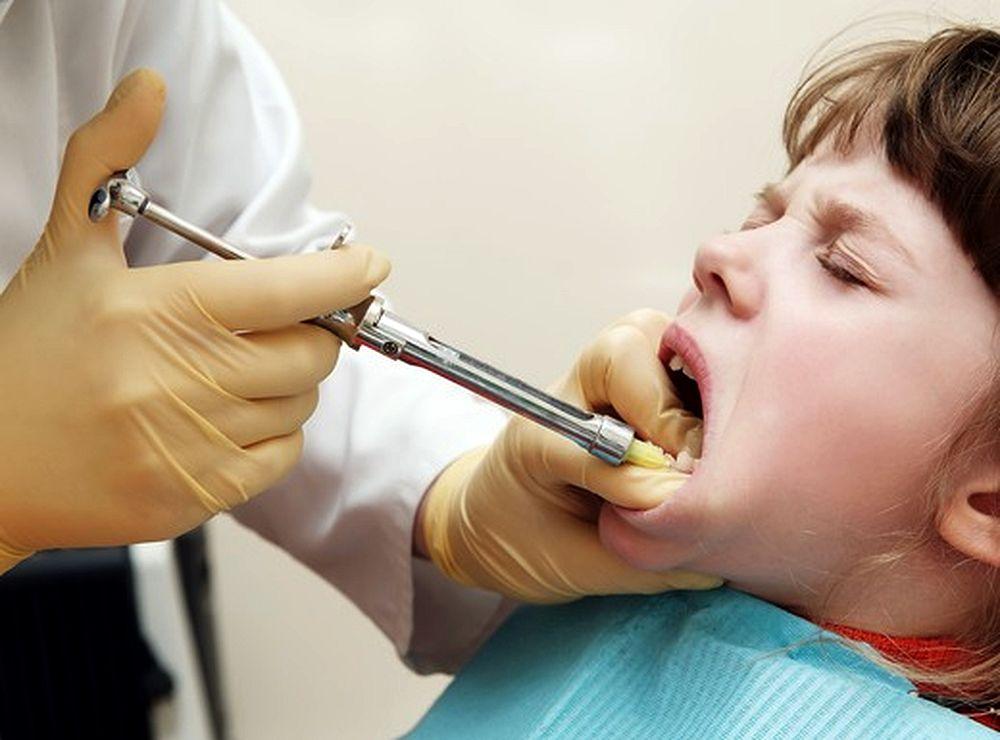 Dental Anesthesia