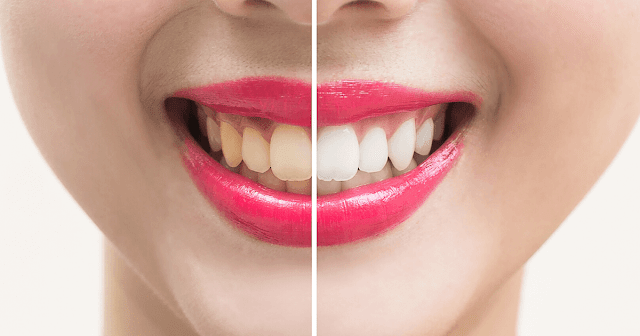 Best Teeth Whitening Products By Barbies Beauty Bits