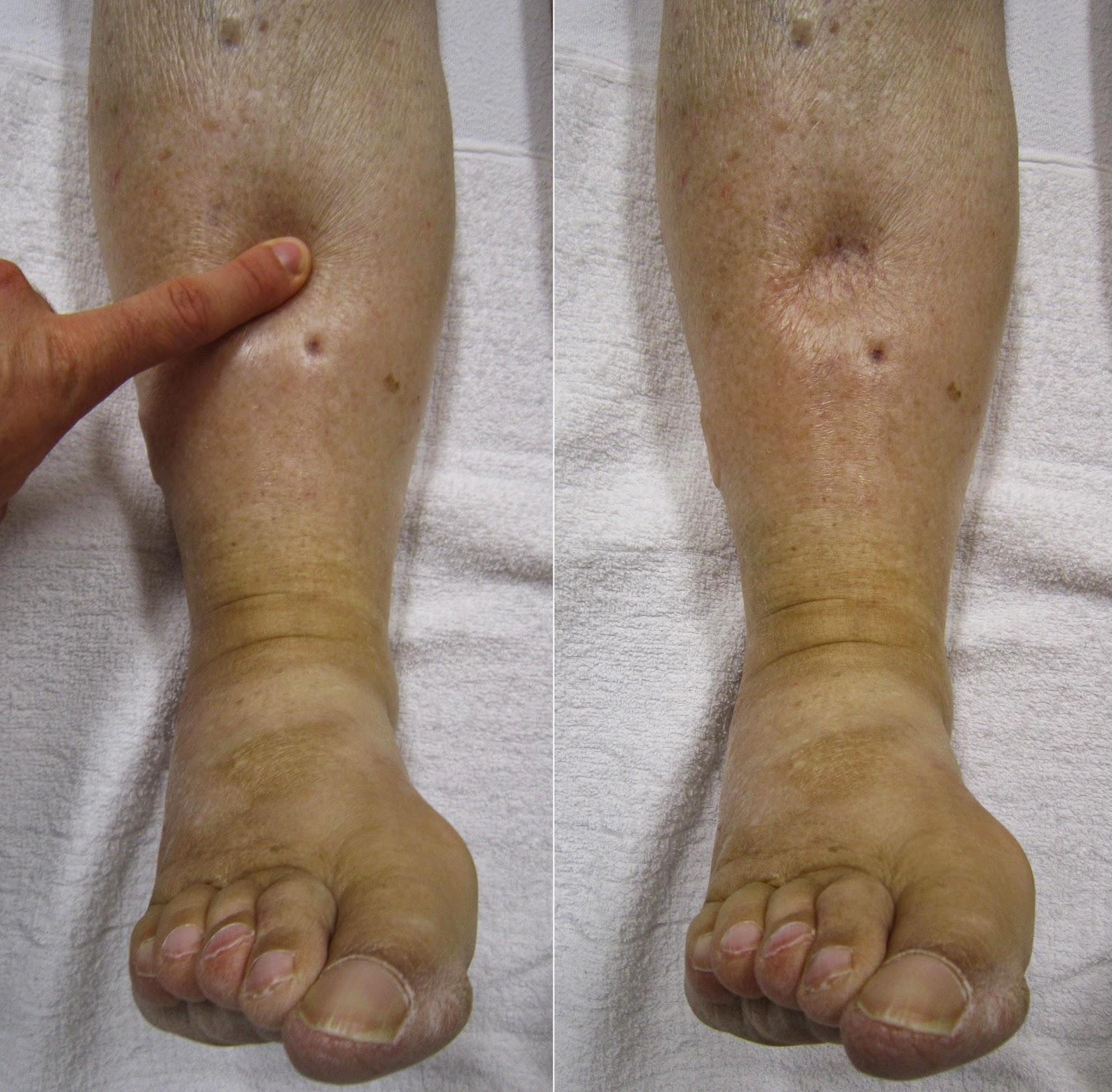 pies hinchados por qué