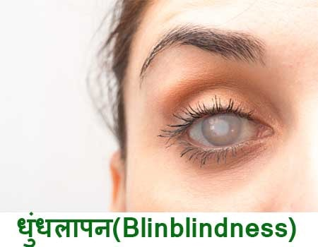 Eye Diseases And Treatment In Hindi