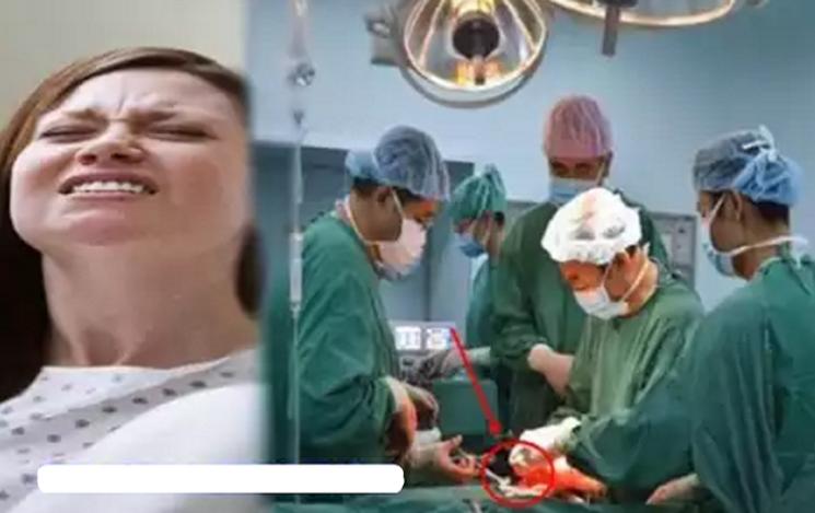 Usai Operasi Caesar, Perut Wanita Ini Membuncit, Saat Dibedah Dokter pun Langsung Berlutut Minta Maaf Setelah Tahu Isinya!! Ternyata...