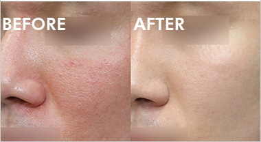 Acne Total Solution From Wonjin Beauty Medical Group