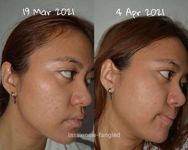 [Review] Datglow Skin Serum Brightening