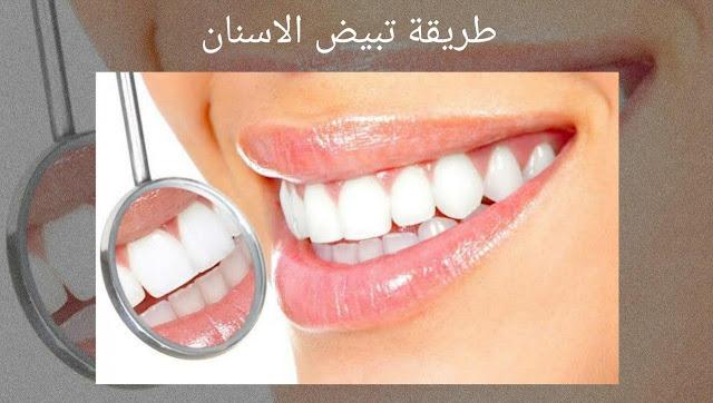 أسرع طريقة لتبييض الاسنان في المنزل بطرق مجربة وفعالة وأمنة