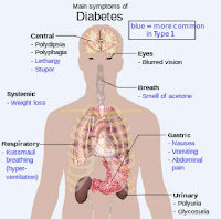gambar organ tubuh diabetes melitus insipidus