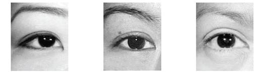 About My Double Eyelid Aesthetics Procedure (Double Suture