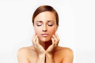 10 Manfaat Odol Atau Pasta Gigi untuk Kulit Wajah Dan Bibir !