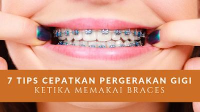 7 Tips Cepatkan Pergerakan Gigi Ketika Memakai Braces