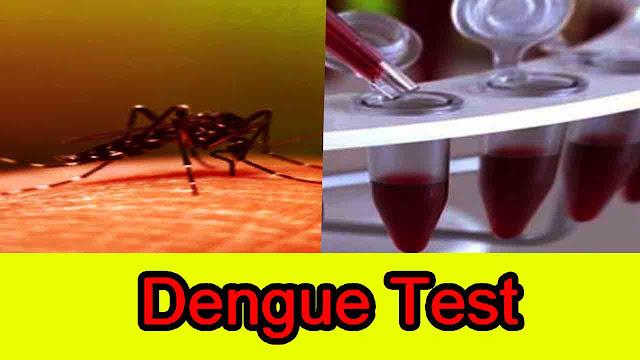 Dengue Test