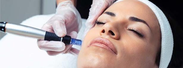 Tratamiento estético con microagujas