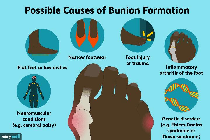 Penyakit Bunion