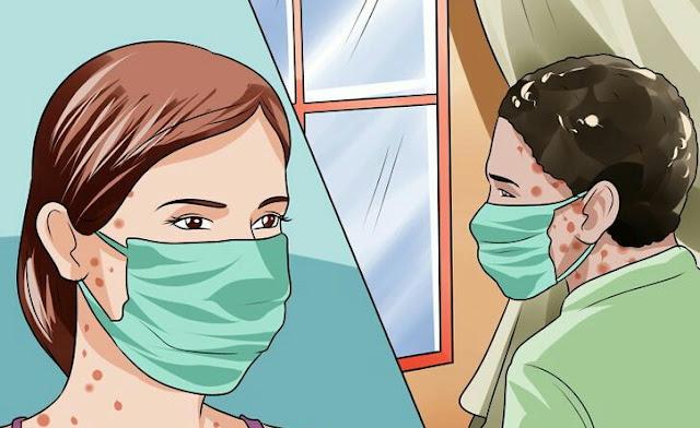 Petanda dan Cara Merawat Chicken Pox