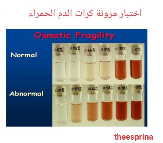 اختبار مرونة كرات الدم الحمراء - Osmotic Fragility Test
