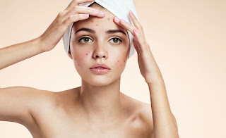 Causes Of Acne On Sensitive Skin And Proper Skin Care