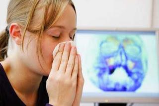 Bệnh viêm đa xoang có nguy hiểm không?