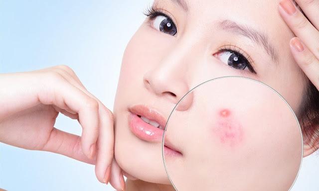 nguyên nhân gây mụn bọc dưới da và cách điều trị