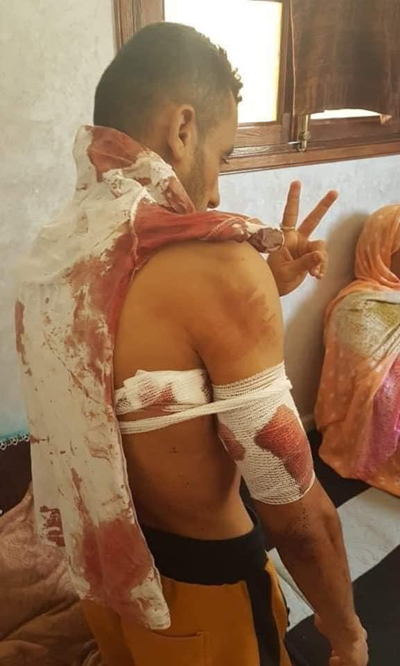 Día Internacional en Apoyo de las Víctimas de la Tortura: Marruecos tortura y asesina a menores saharauis con absoluta impunidad por su pensamiento político