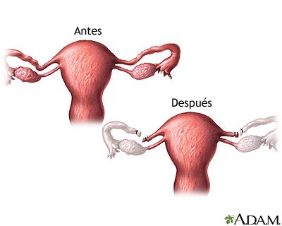 Herpes genital y Ligadura de trompas de falopio: Ligadura de Trompas ...