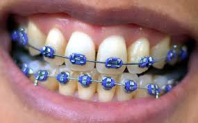 Dental Braces & Clipping | Dental Remedies,