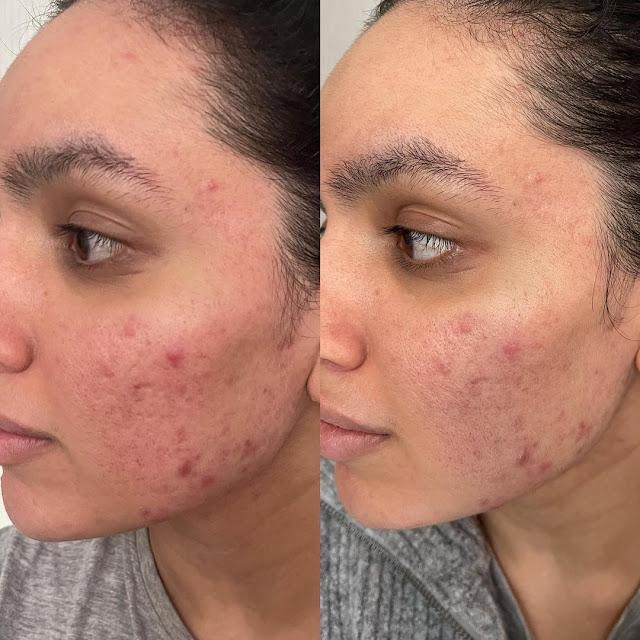 Faire disparaître les taches d'acné avec ce remède magique de grand mère