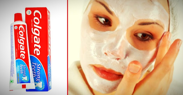 Toothpaste for blackheads problem.