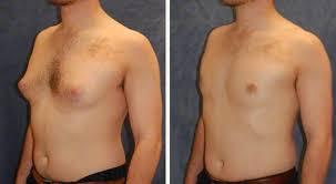 علاج التثدي عند الرجال بطرق طبيعية واسباب التثدى  ونصائح للرجال للتخلص من التثدي
