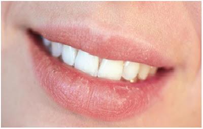 7 Petua Menangani dan Merawat Bibir Kering Dengan Cepat