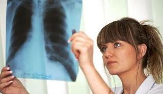Gejala dan Cara Pengobatan Penyakit Paru-paru Basah atau Pneumonia