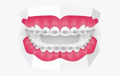 Best Orthodontist Melbourne