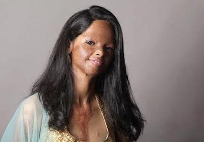 Chhapaak Movie Acid Attack Survivor Lakshmi Aggarwal