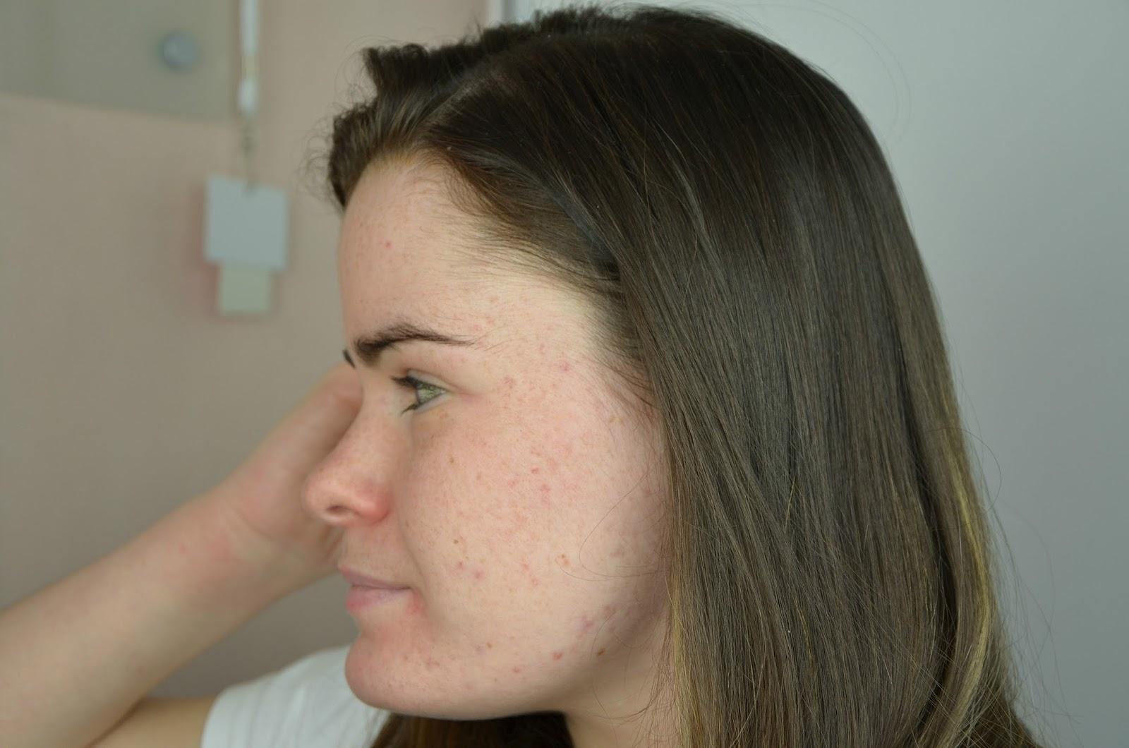 bilan du quatrième mois de traitement contre l'acné joue gauche
