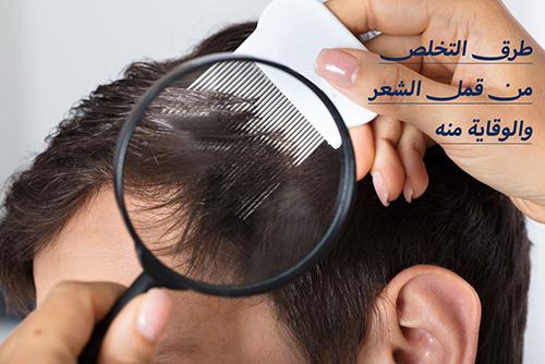 طرق التخلص من قمل الشعر والوقاية منه