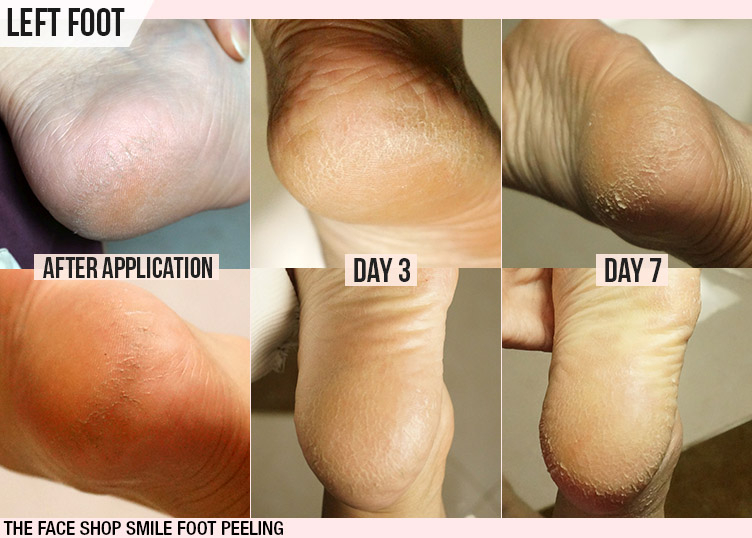 The Face Shop Smile Foot Peeling Review, Korean Brand Foot Peeling Product