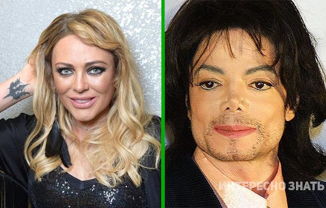 Знаменитости, которые ушли в мир иной из-за пластической хирургии