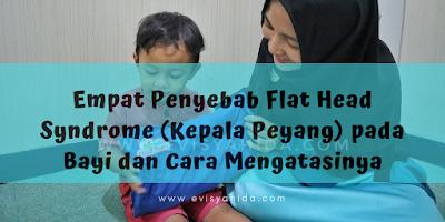 Penyebab Flat Head Syndrome