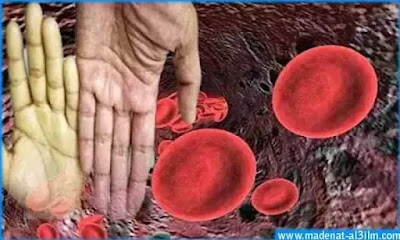 اعراض فقر الدم وعلاجه