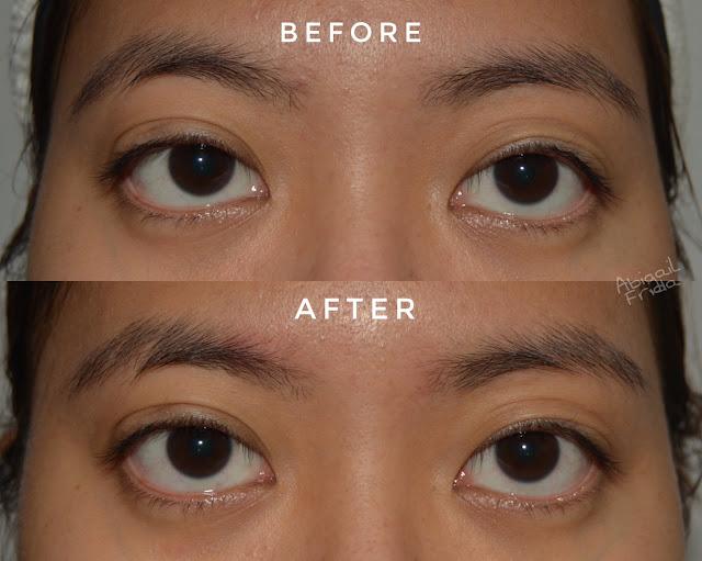 [Review] Elsheskin Eyessential Night Serum | Serum Retinol yang Bantu Mengencangkan Area Mata