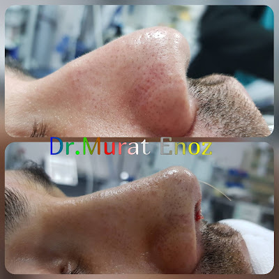 Open Technique Nose Tip Plasty in Istanbul