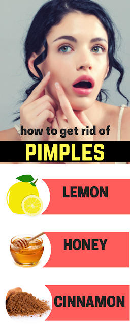 How To Get Rid Of Pimples With Cinnamon