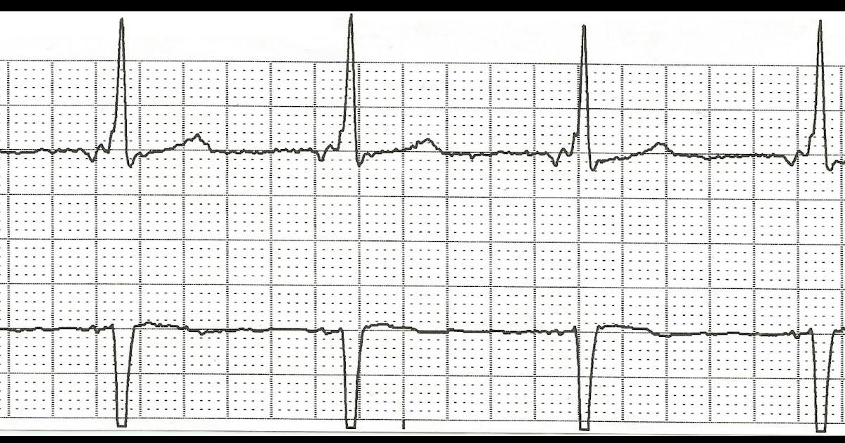 Float Nurse: Practice EKG Rhythm Strips 174
