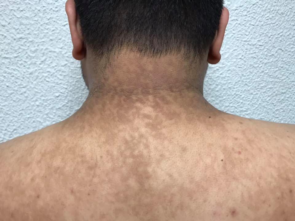 papilomatosis confluente tratamiento