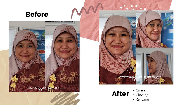 Korean Glass Lift di Ella Skin Care Lampung