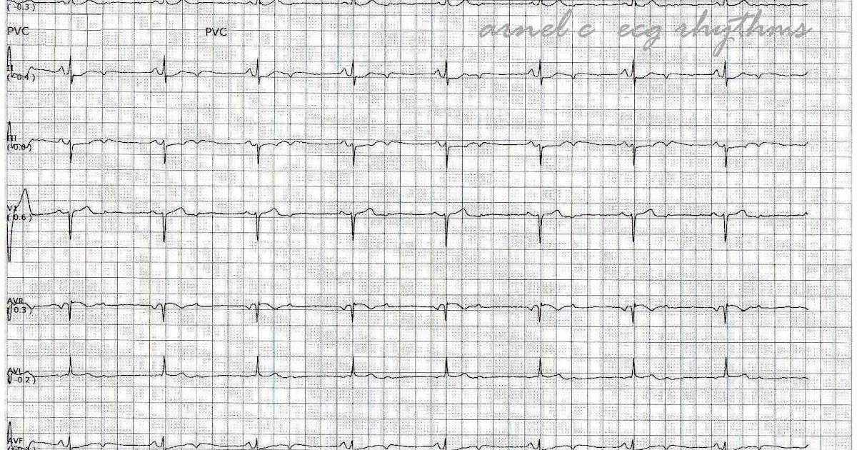 Heart Diagram Quiz Totaline Thermostat Wiring P374 Ecg Rhythms: A Not Frequent Cause Of Bradycardia